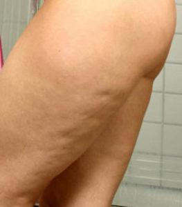 Cellulite Reduction Massage at Cressinghams in Dartford